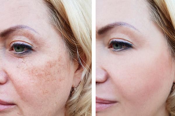Ipl Skin Rejuvination